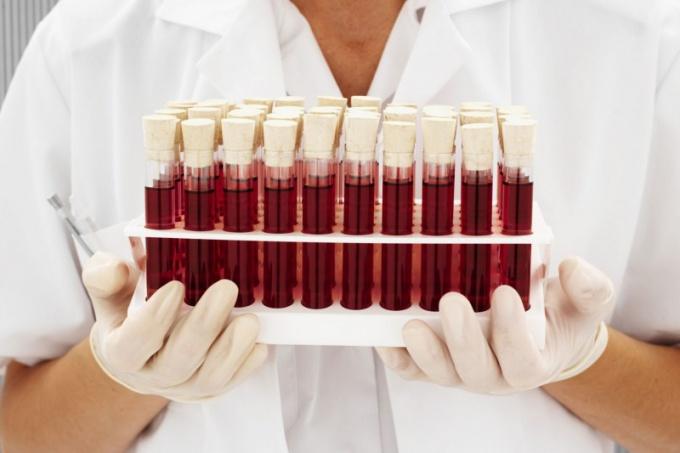 Сколько существует групп крови?
