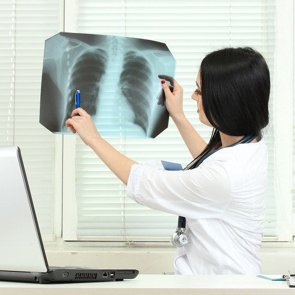 How to fix 3 degrees of scoliosis
