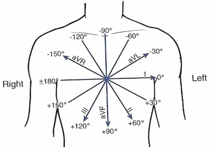 Электрическую ось сердца можно увидеть на ЭКГ