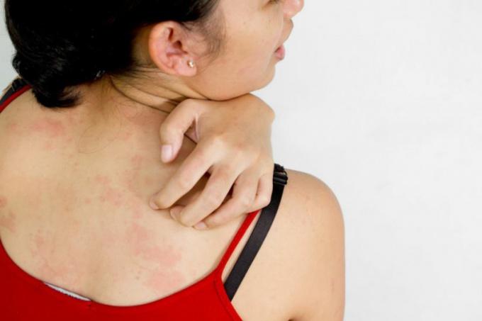 как лечить аллергию зуд кожи