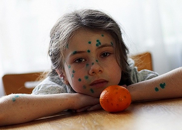 Is it possible to walk with your child during the chicken pox