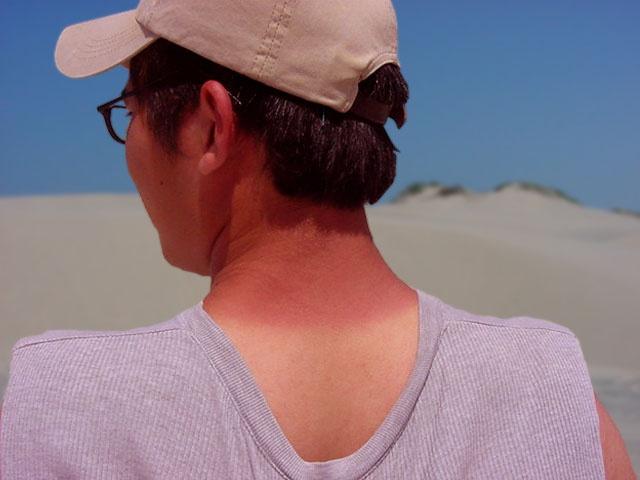 Что делать при солнечном ожоге