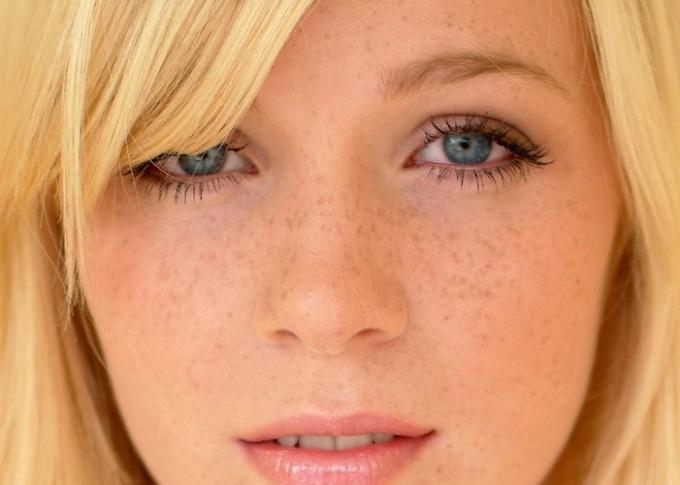 Веснушки на лице: косметологические процедуры