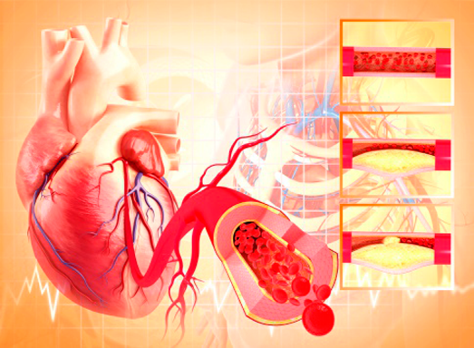 What is cholesterol plaques