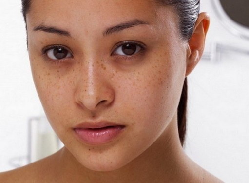 The causes of dark circles under the eyes