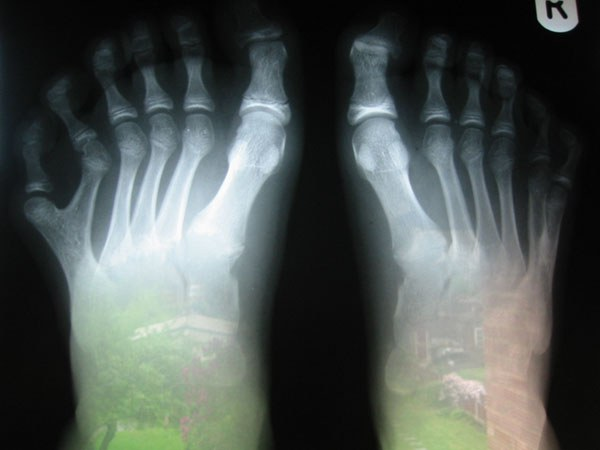Despite the unusual appearance, polydactyly easily disposable.