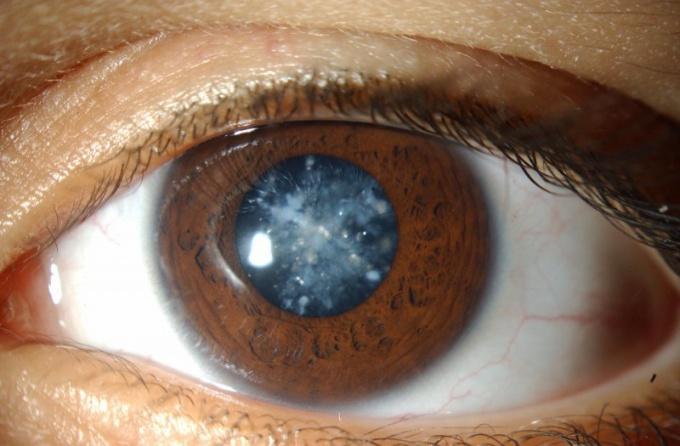 Почему зрение помутнело
