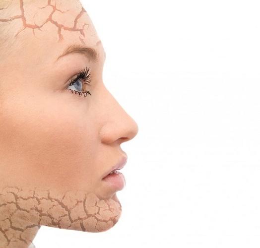 Ихтиоз: симптомы и лечение