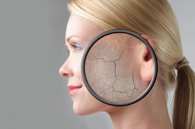 Домашние маски для лица от шелушения кожи