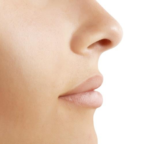 Искривление носовых перегородок