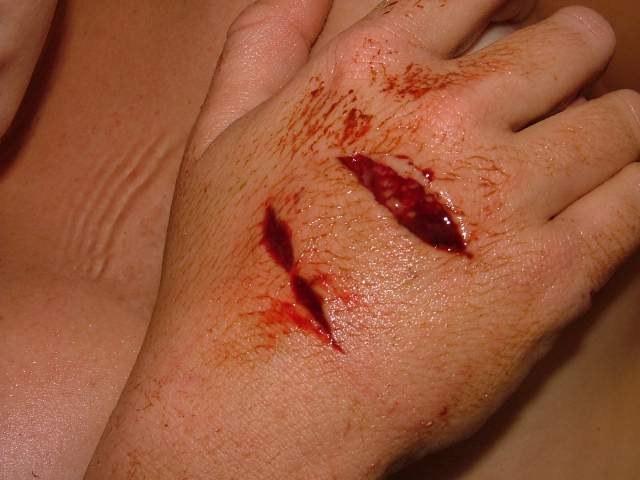 Как избежать заражения крови при ранении