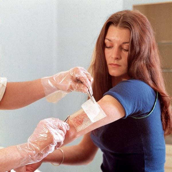 лечение подкожных паразитов