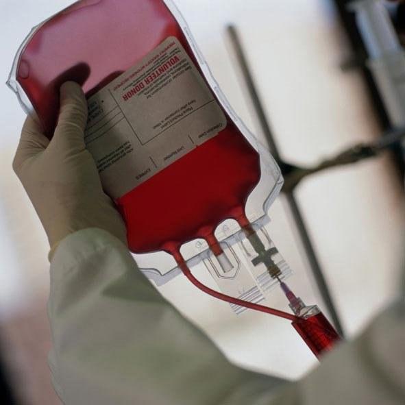 Как стать донором органов посмертно