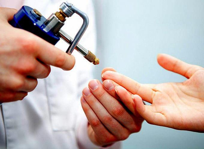 Криотерапия – лечение методом замораживания тканей с помощью жидкого азота, температура которого минус 190-196 градусов Цельсия