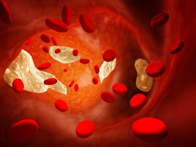 Помогают ли народные средства понизить холестерин
