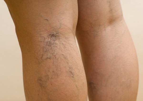 How to remove bulging veins in the legs