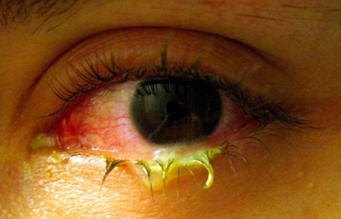 How is conjunctivitis