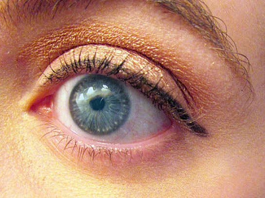 How to cure white bumps on eyelids
