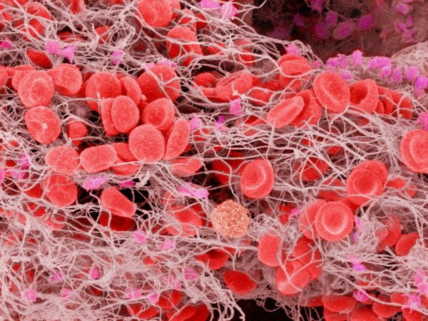 Why are blood clots and how to avoid it