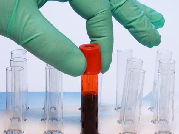 Как группа крови влияет на болезни