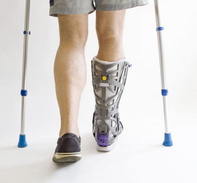 Какие бывают переломы