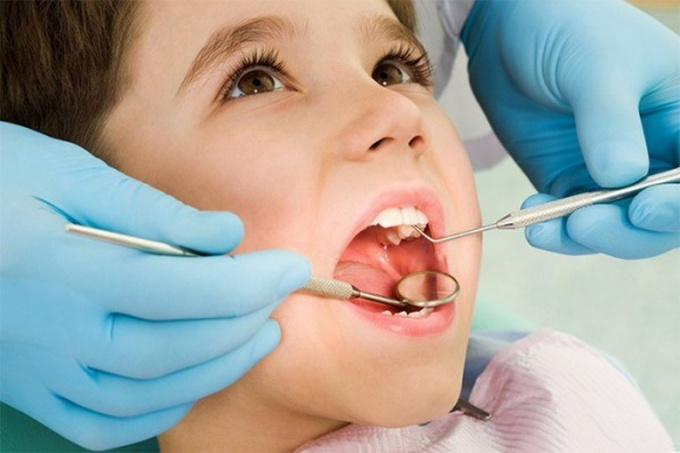 Treatment of caries in children can be performed only by an experienced technician