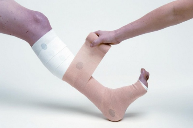 How to bandage the legs with varicose veins