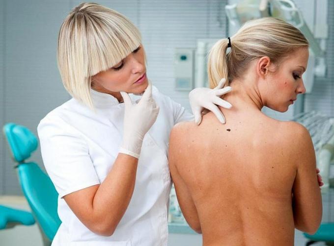 Определять, опасна ли родинка, должен только онколог-дерматолог