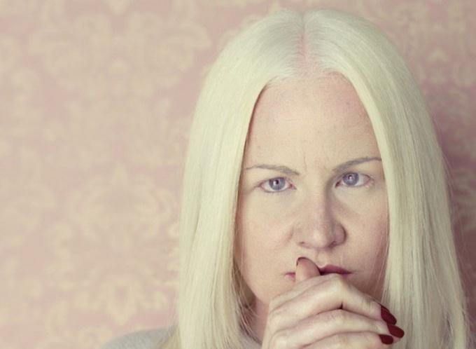 Чем отличаются альбиносы