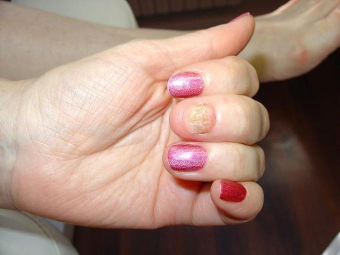 Грибок ногтей рук