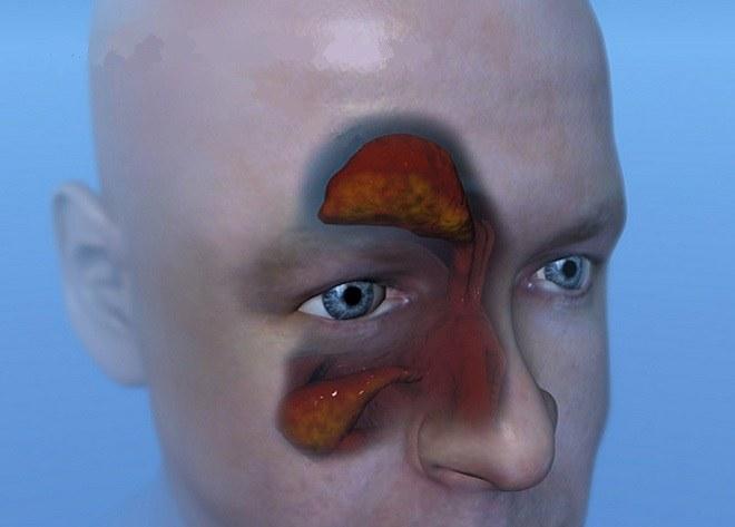 Воспаление гайморовых пазух что это и как лечить