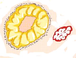 Регресс желтого тела