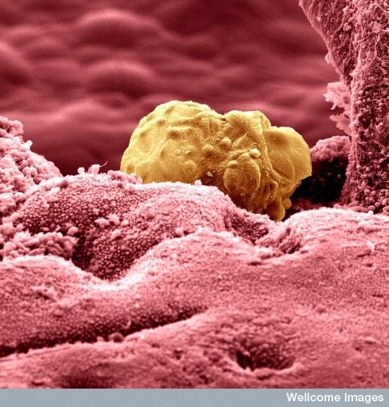 Желтое тело фото