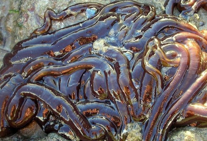самый длинный паразит в организме человека