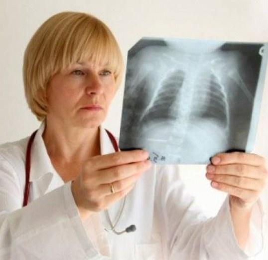 Как возникает рак легких