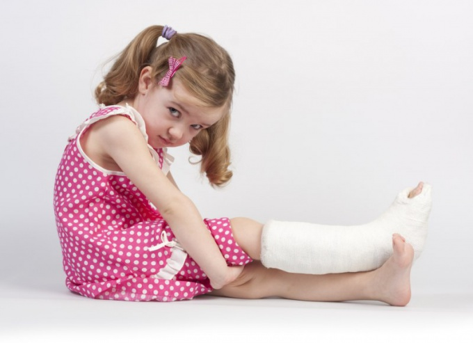 Чем опасен перелом берцовой кости
