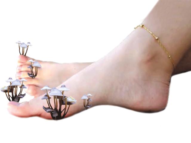 Грибок ногтей на ноге лекарство