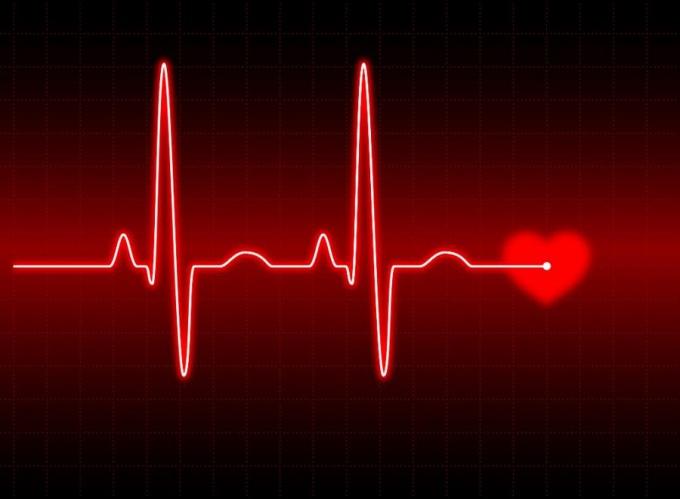Аритмия, причины, как ее лечить