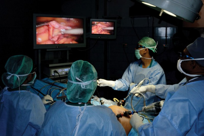 Under what anesthesia is being done laparoscopy