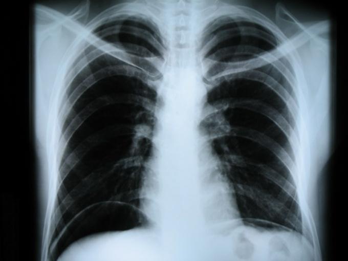 Какая доза облучения от рентгена
