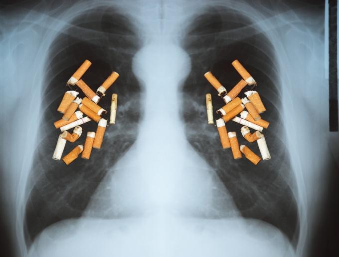 Как курение влияет на легкие