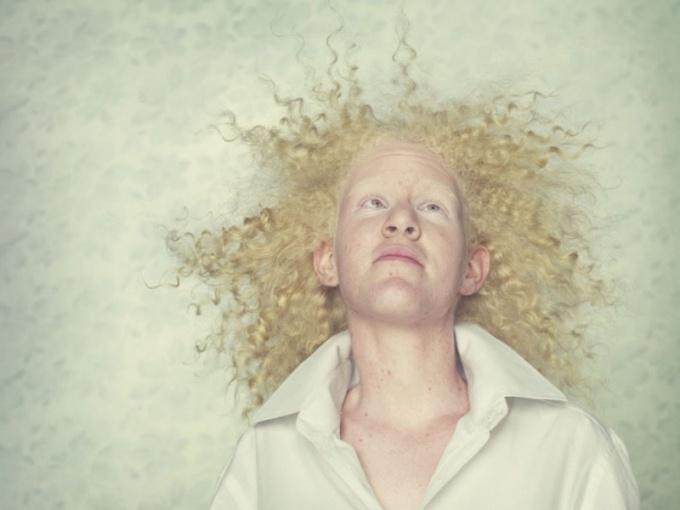 Почему рождаются люди альбиносы