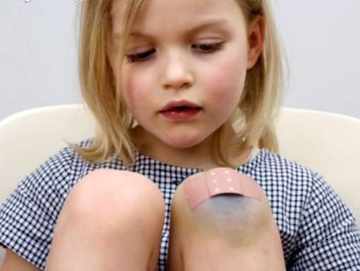 как можно обработать рану