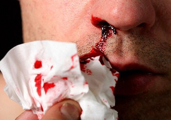 The dream of nose bleeds, could spell both pleasure and sorrow.