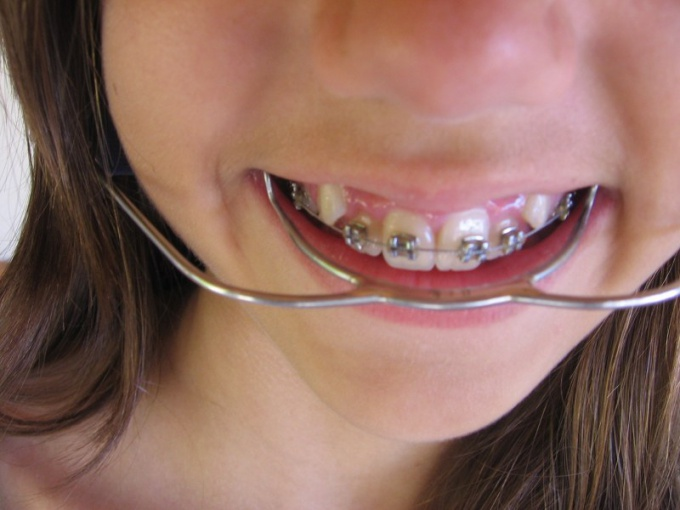 Как сделать пластинки на зубы