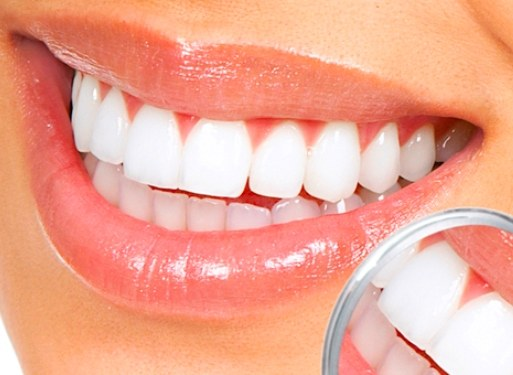 What is hygienic teeth cleaning is and what it is