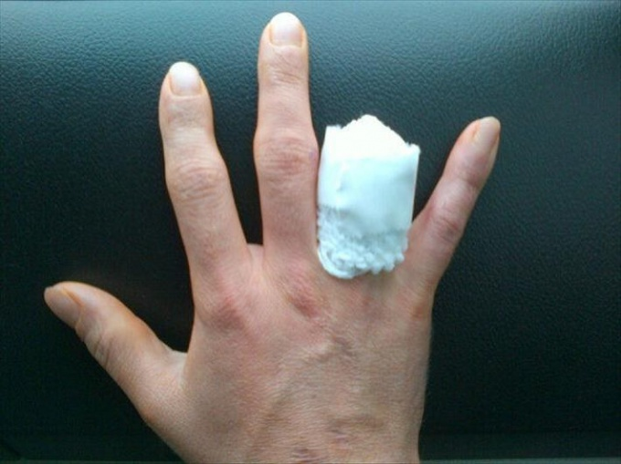 Compressive bandage on the stump in amputation of the finger.