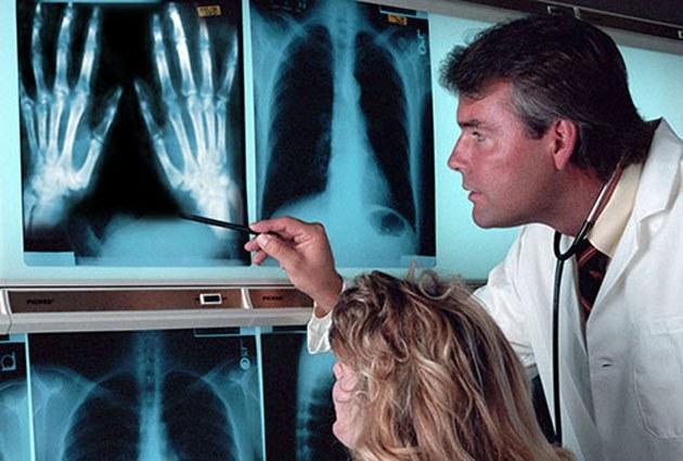 Рентгенографическая диагностика туберкулеза костей
