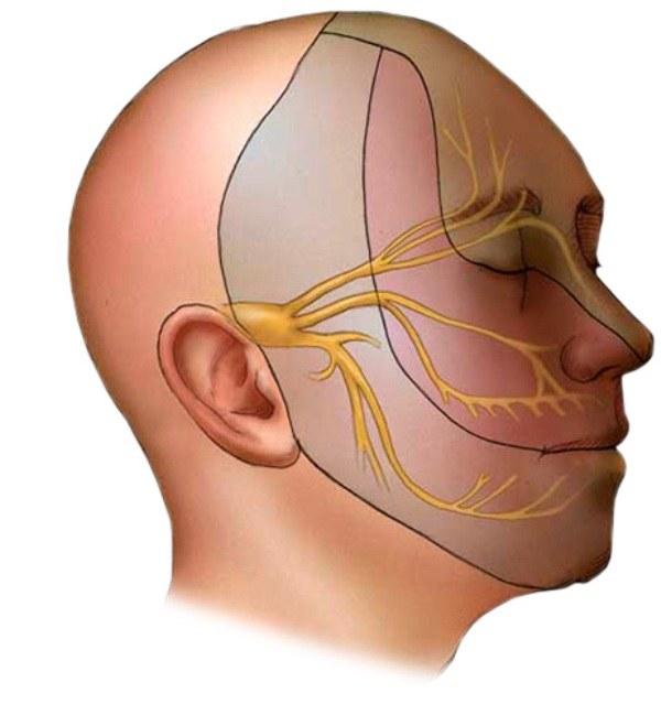 Как лечить паралич лица от сквозняка