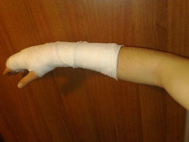 Гипсовая повязка при переломе лучевой кости